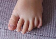 Meisje met 6 tenen